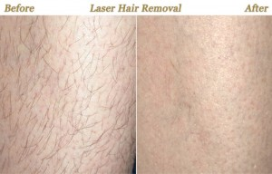 laser-hair-removal-treatment 11111