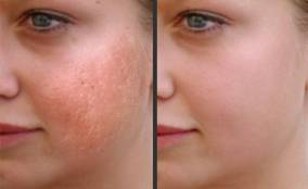 laser-skin-treatments 22222